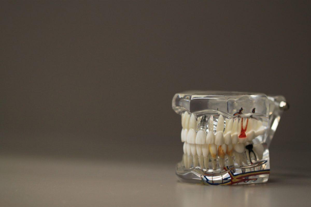 Zła droga odżywiania się to większe niedobory w zębach a dodatkowo ich utratę